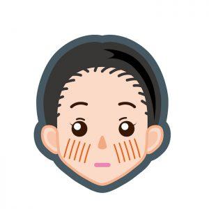 男性でも簡単&すぐにできる赤ら顔対策