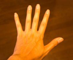 指先も綺麗に!指毛ケア後に現れる毛穴の黒い点の簡単対処法